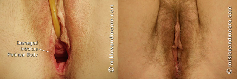 vaginal cosmetic surgery before and after jpg 853x1280