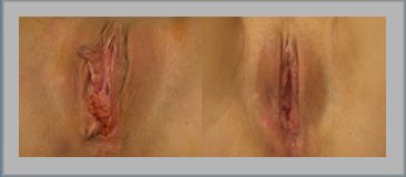 Labia Revisions and Restoration (botched)