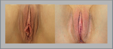 Clitoral Hood Reduction Before and After