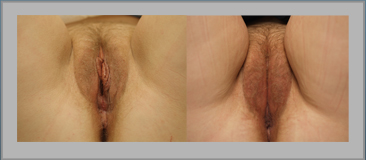 Labia Majora Convergence Before and After Gallery