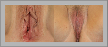 Labia Minora Reduction Before and After Gallery