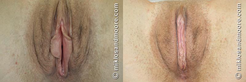 Vaginoplasty Vaginal Tightening Surgery
